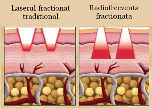 radiofrecventa-fractionata-tratarea-ridurilor