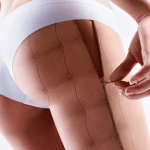 Tratamente recomandate de medicii dermatologi ai clinicii ELOS SKIN&LASER CENTER pentru eliminarea celulitei